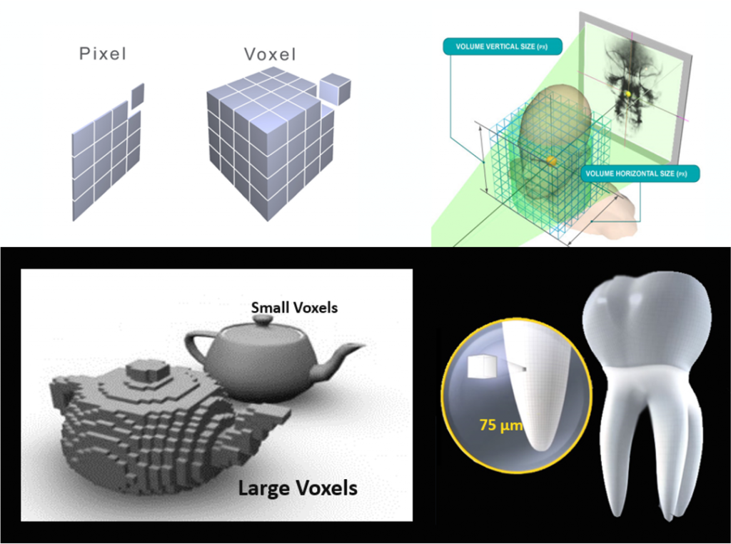 What is a voxel diagram